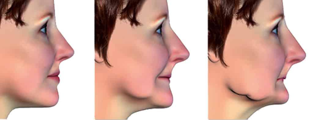 Деформация лицо после потери зубов