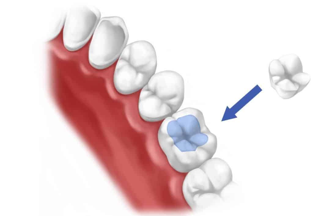 Микро протез(пломба)