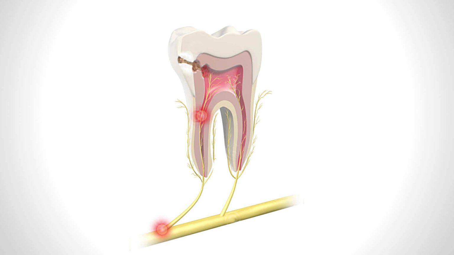 Картинки пульпита зуба