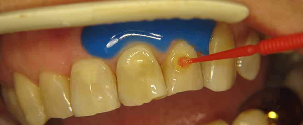Стадии эрозии зубов