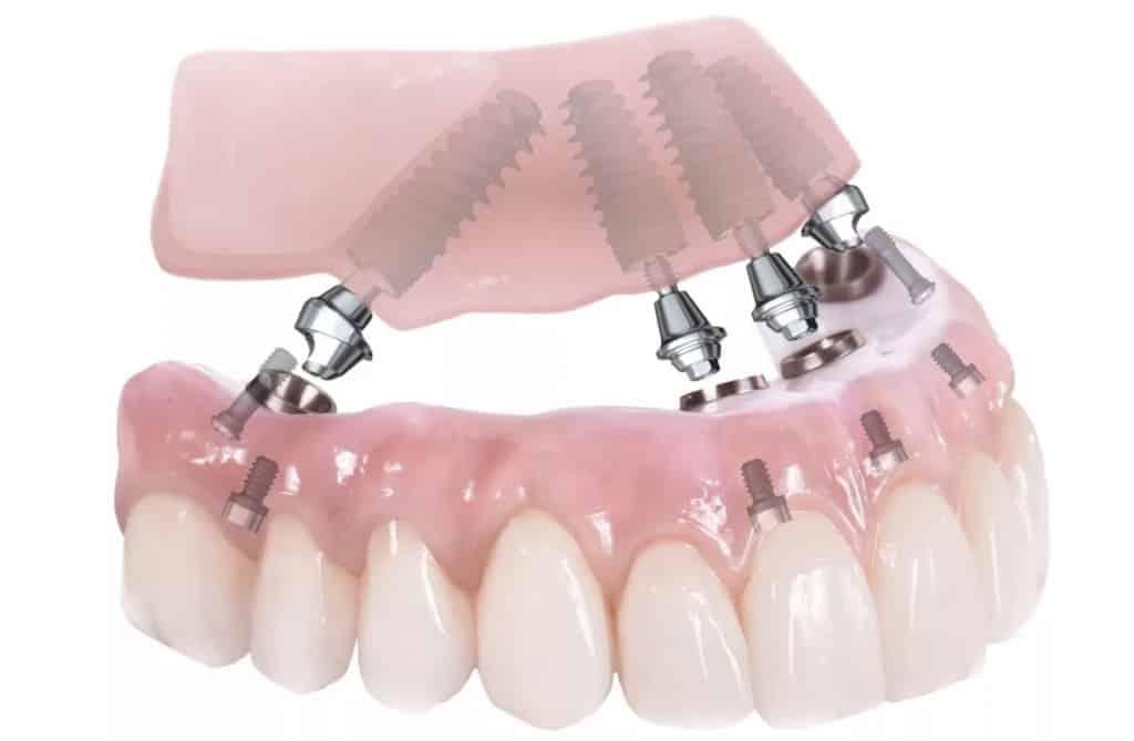 Понятие базальной имплантации зубов