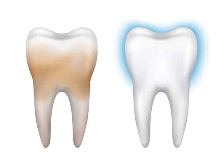 Pеминерализация зубов