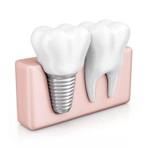 Что делает врач стоматолог – имплантолог?