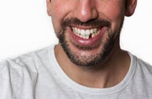 Что делать, если выбили зуб?