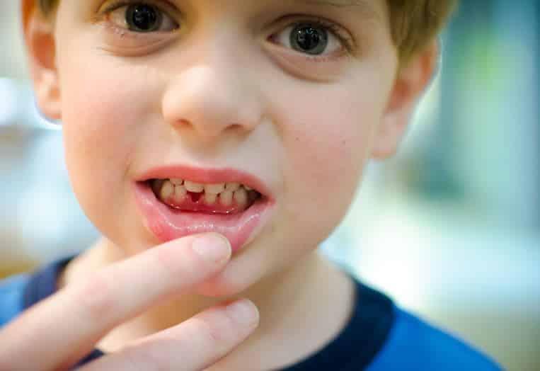 Лечение гнингивита у детей