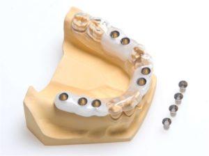 Анализы перед имплантацией зубов