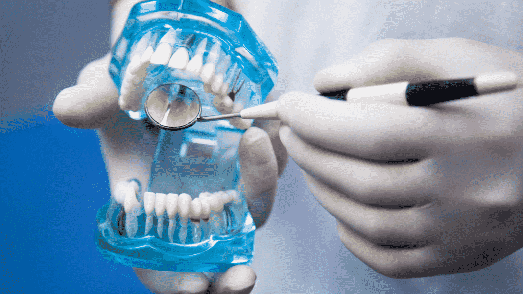 Как правильно ухаживать за имплантатами