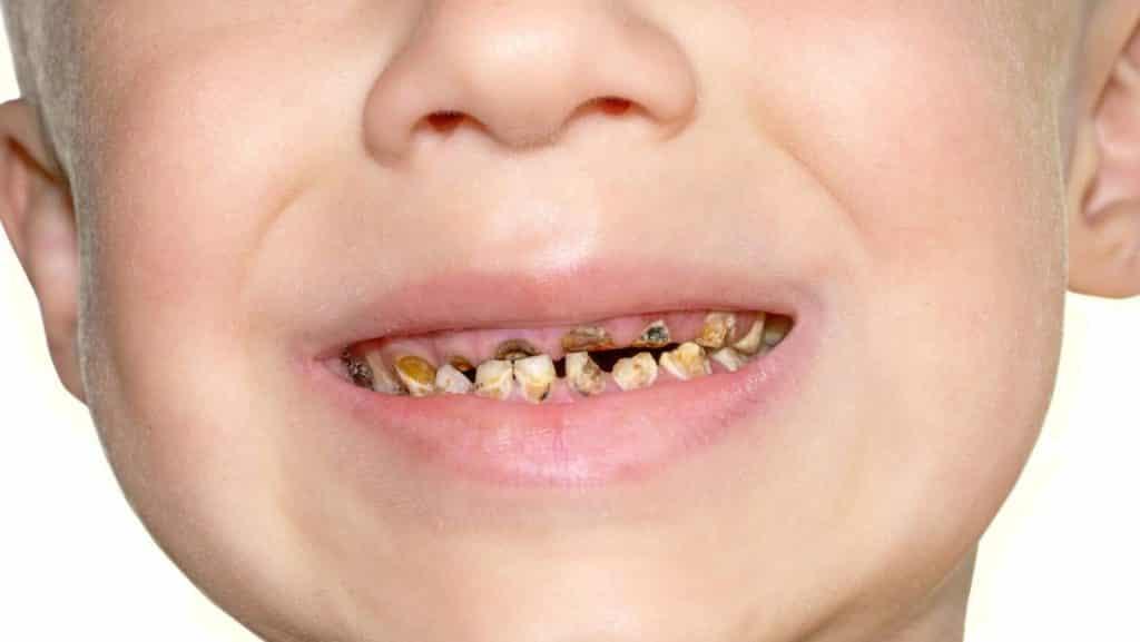 Особенности кариеса молочных зубов