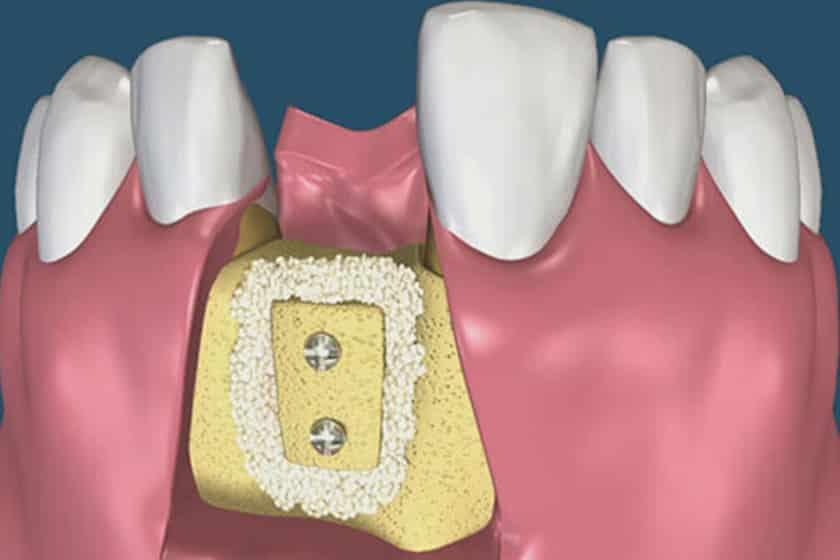 Пересадка костного блока
