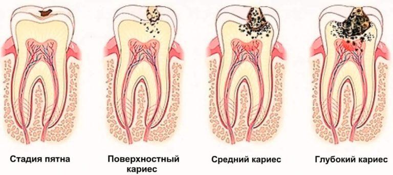 Стадии кариеса молочных зубов
