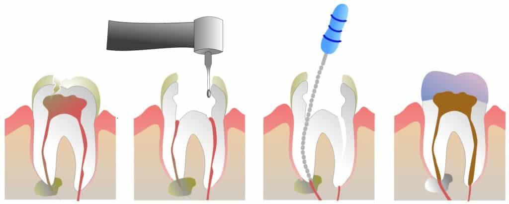 Эндодонтическая терапия