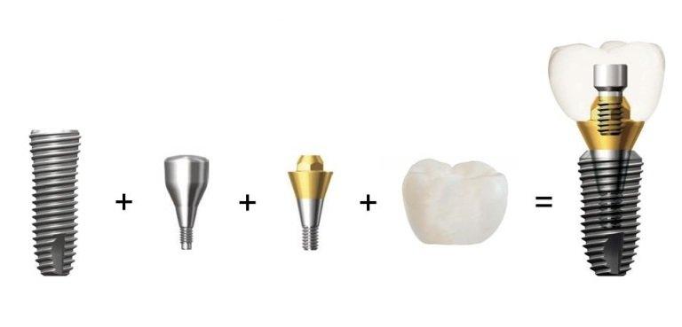 Характеристики имплантатов Dentium