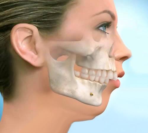 Почему развивается дистальный прикус зубов