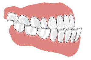Этиология появления мезиального прикуса зубов
