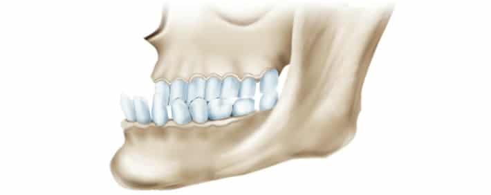 Мезиальный прикус зубов