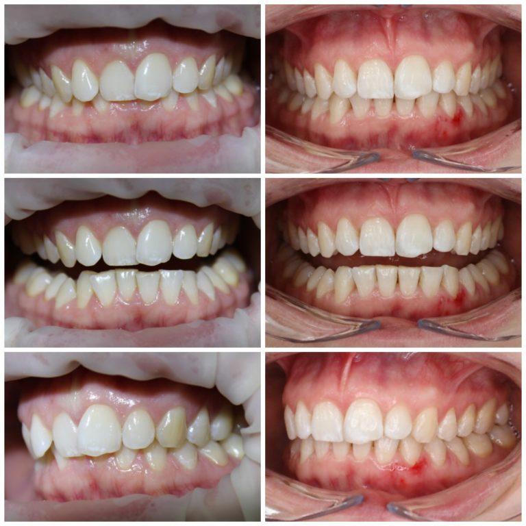 Исправление положения зубов с помощью элайнеров star smile
