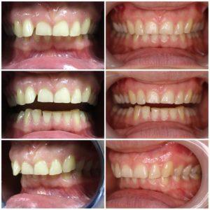 Одночелюстное лечение с помощью элайнеров Star Smile