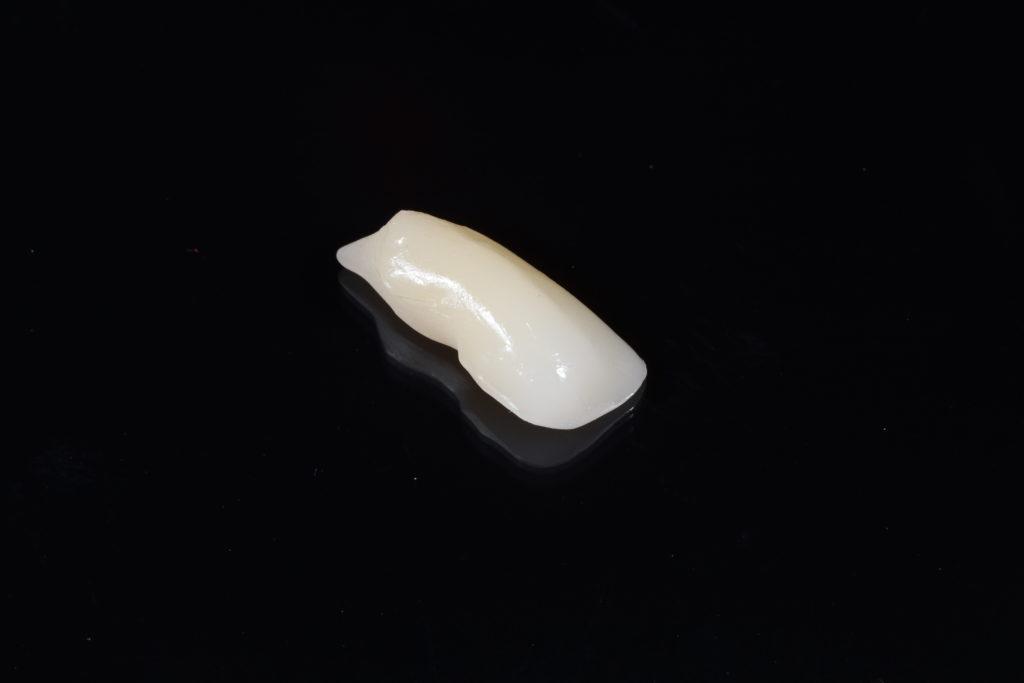Кейс 5- модуль зуба