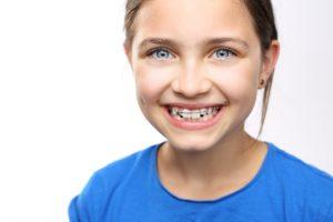 5 вопросов об исправлении прикуса у детей