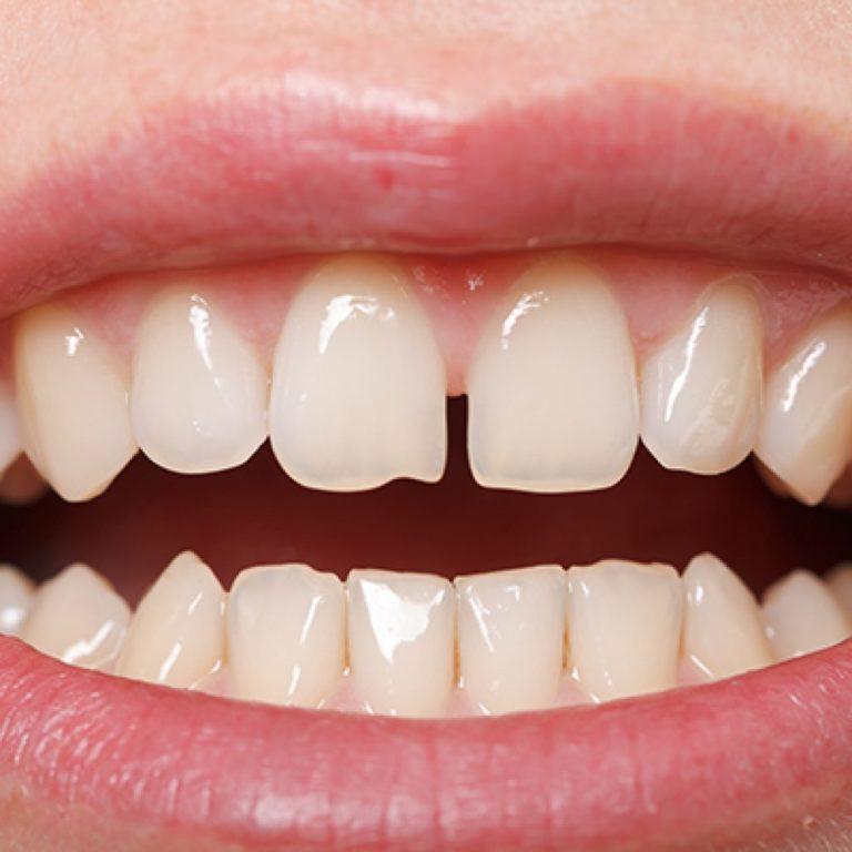 Диастема зубов