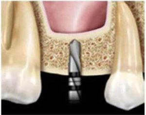 Ход операции закрытого синус–лифтинга