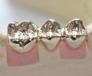 Металлические зубные коронки