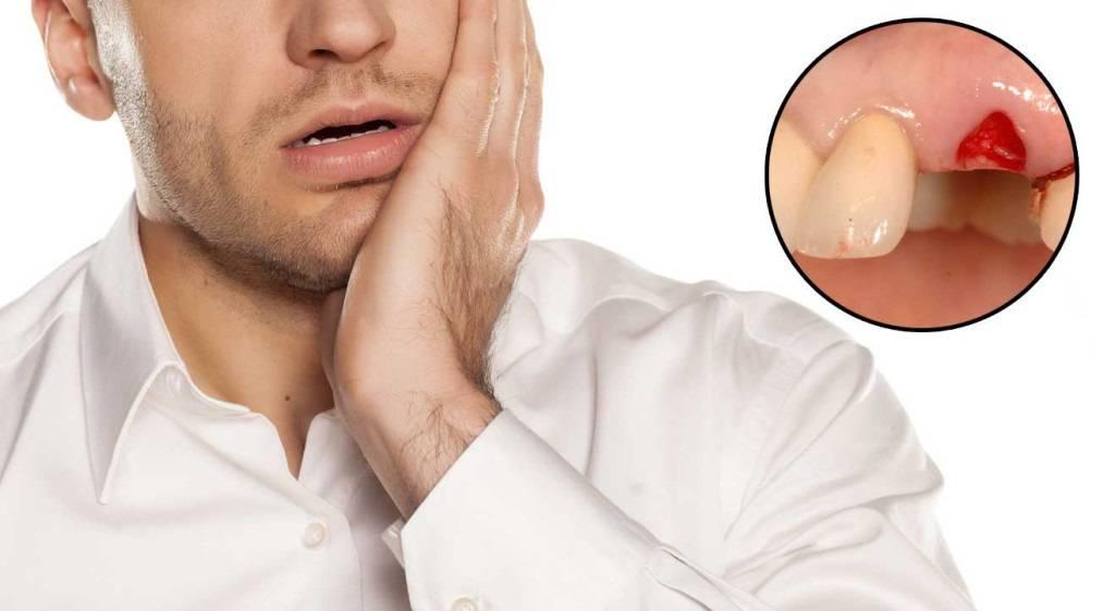 Возможные негативные последствия после удаления зуба