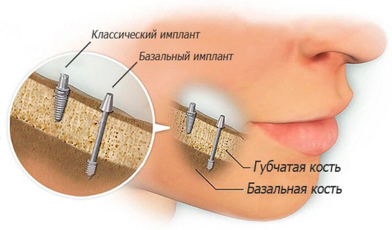 xbazalnaya-implantaciya.jpg.pagespeed.ic.1WVfxm3p3M