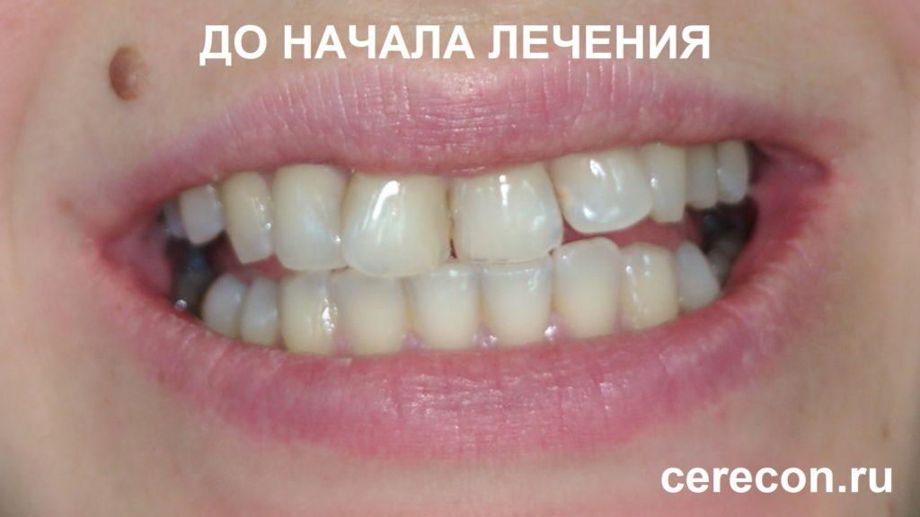 Так выглядели зубы Надежды до установки виниров