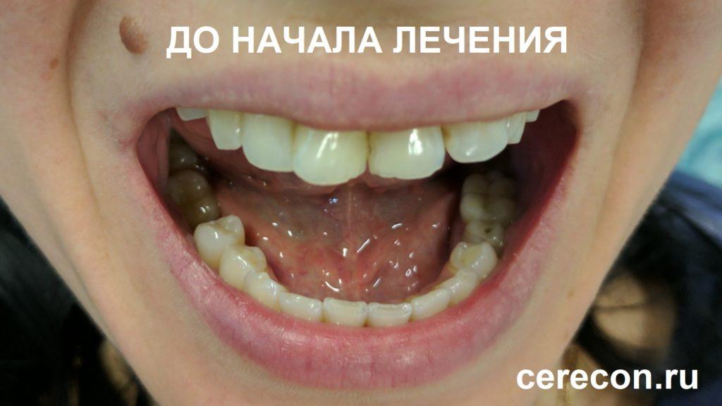 В тоже время, зубы имели разную высоту и различные угловые отклонения
