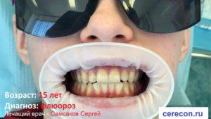 При флюорозе зубы без эмали, она поражена заболеванием