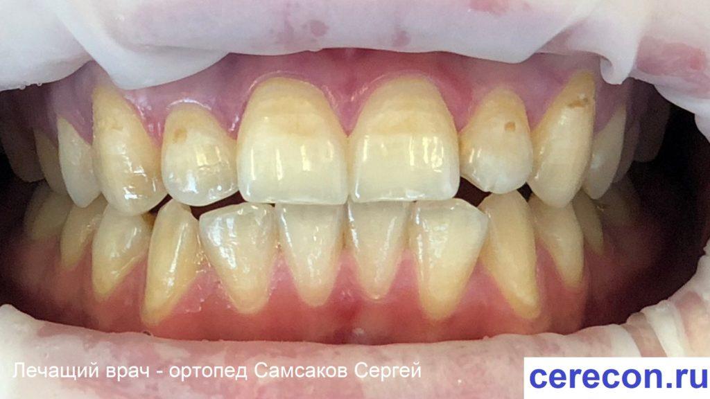 При флюорозе зубы практически без эмали зубов