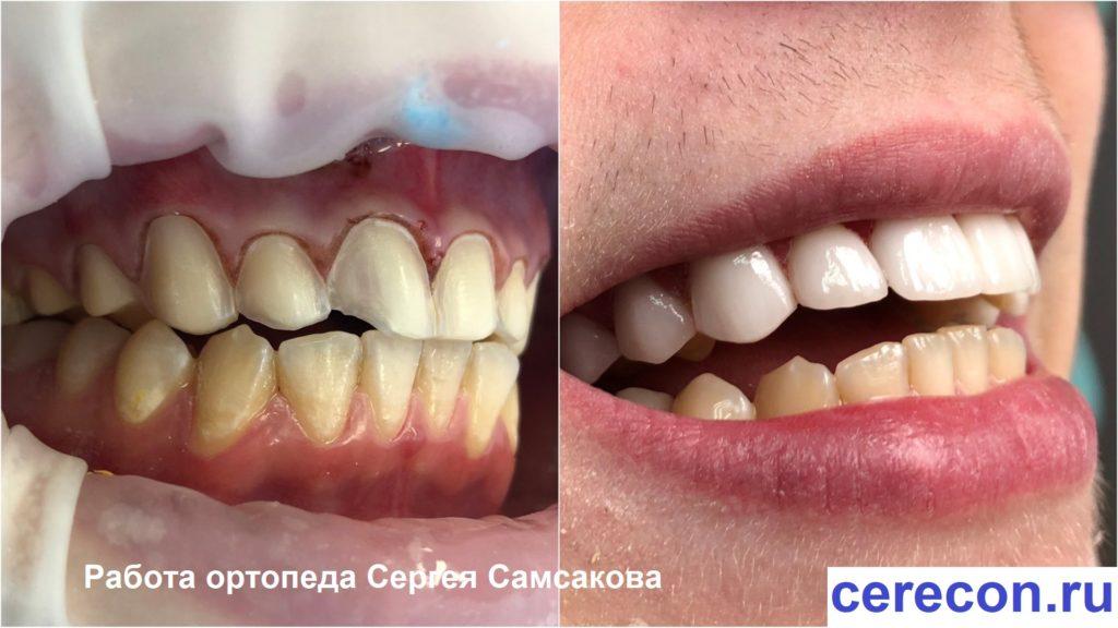 Установка виниров когда эмаль зубов повреждена флюорозом
