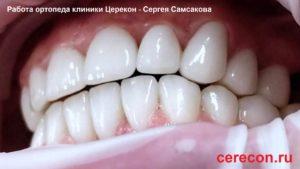 Мужские виниры. Установки виниров в клинике Церекон, Москва
