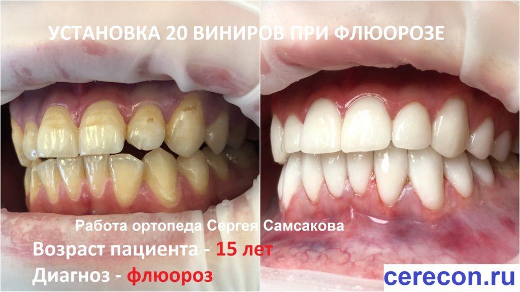 Установка виниров при флюорозе., когда эмаль зубов повреждена