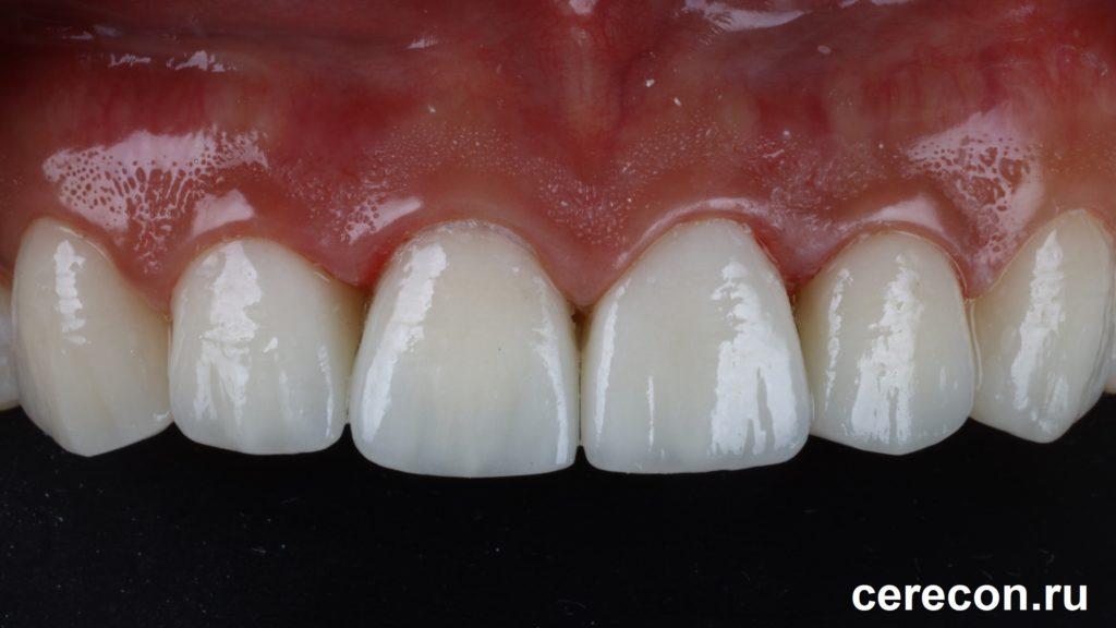Виниры на передних верхних зубах