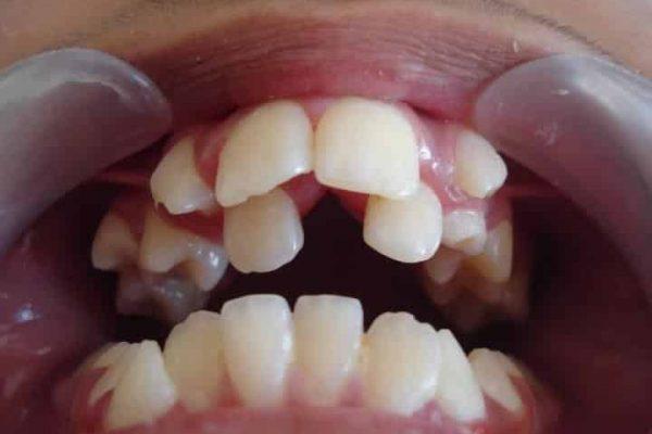 Аномалия зубного ряда