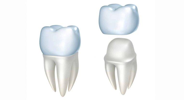 Детское протезирование зубов коронками