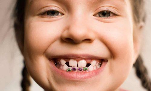 Специфика работы детского ортодонта