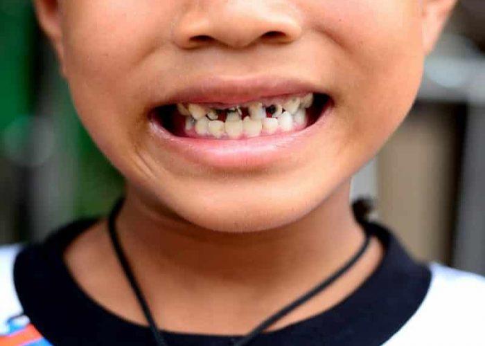 Гниют зубы у ребенка