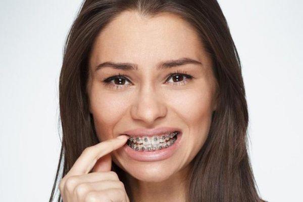 Дискомфорт при использовании съемных ортодонтических аппаратов
