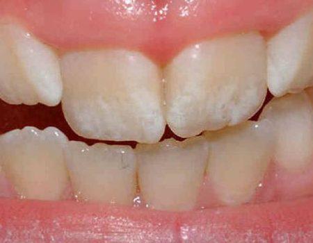 Симптомы эрозии эмали зубов