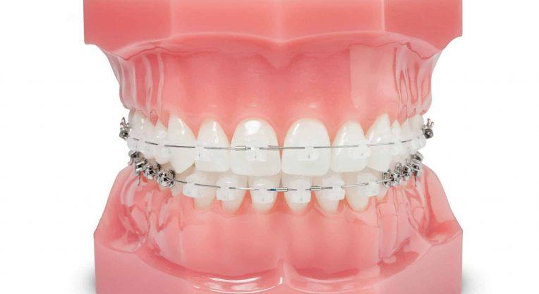 Не портятся ли зубы после брекетов?