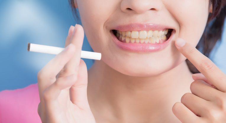 Что будет с зубами, если постоянно курить