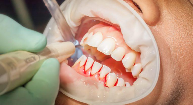 Лечение гингивита у стоматолога