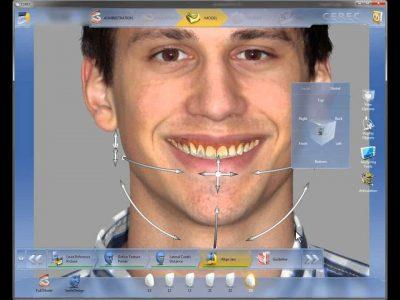 Изготовление трёхмерного снимка зуба