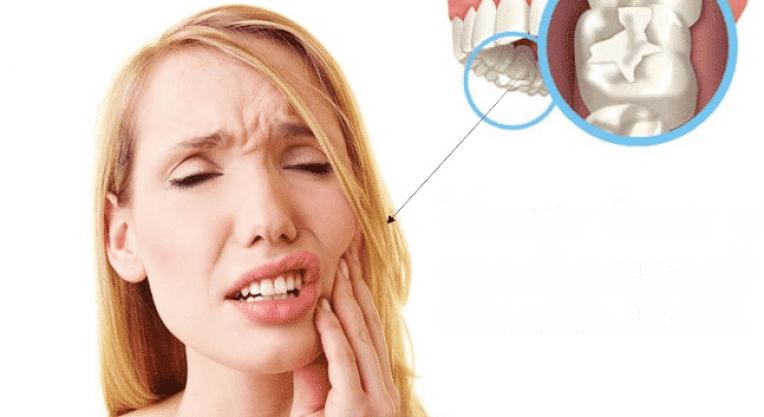 Болит зуб после установки временной пломбы