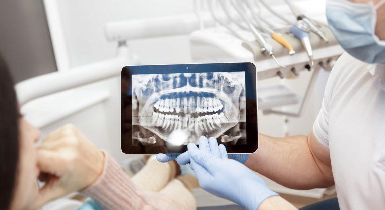 Зачем стоматолог просит сделать КТ. Насколько это безопасно