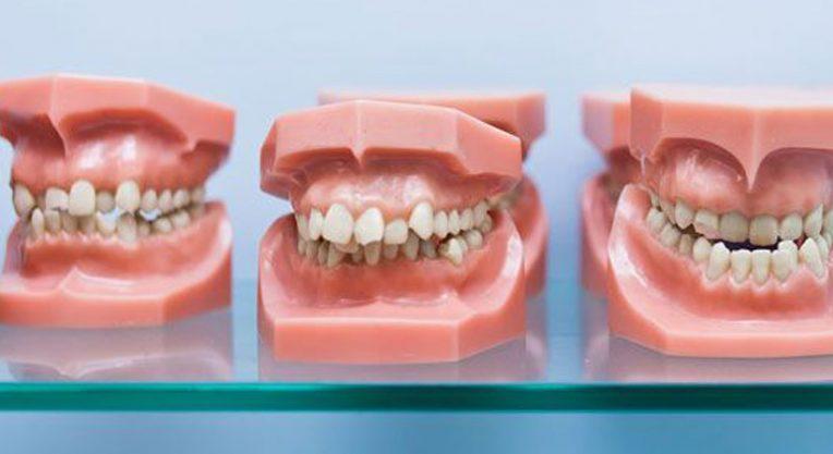 Дистопический прикус зубов - возможные последствия