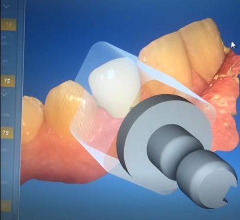 Кейс 2- Восстановление депульпированного зуба